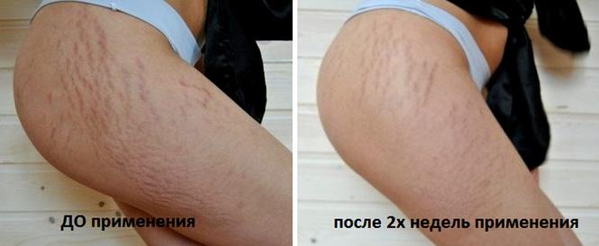 Если проблема стала заметна, к ним следует добавить другие методы, которые помогут избавиться от целлюлита на ногах в